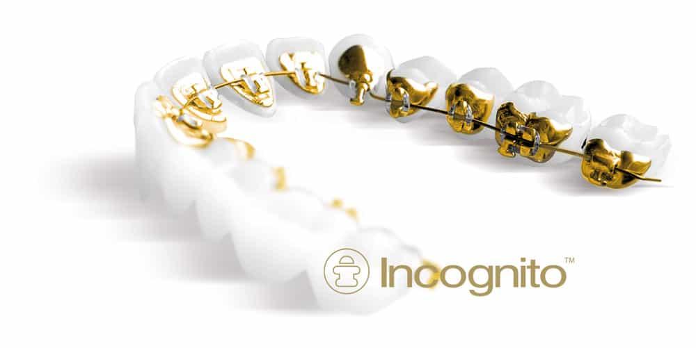 incognito-lingual-braces