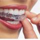 invislign in womans mouth